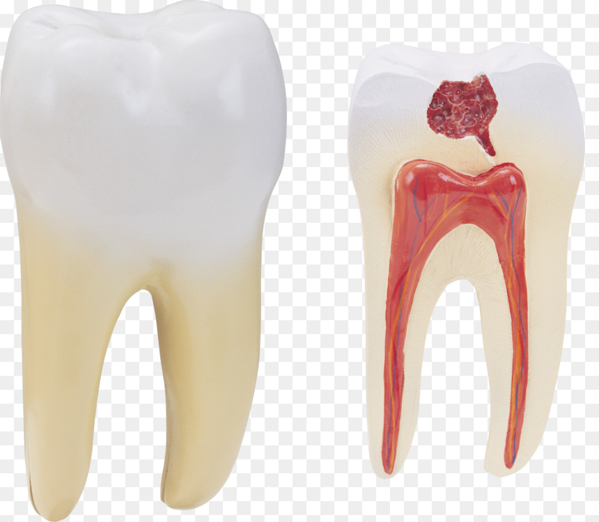 Human Tooth Homo Sapiens Anatomy Tooth Decay Free Png Image Tooth