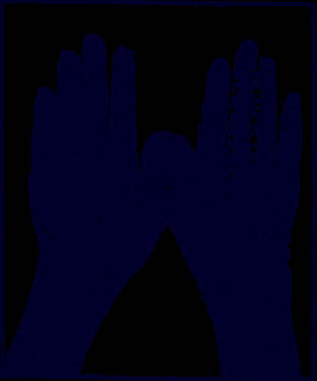 Radiography,Finger,Saguaro